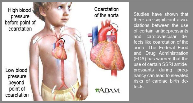 Studies have shown that there are significant associations between the use of certain antidepressants and cardiovascular defects like coarctation of the aorta.